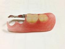 ノンクラスプ義歯①