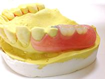 ノンクラスプ義歯②