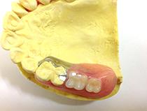 ノンクラスプ義歯③